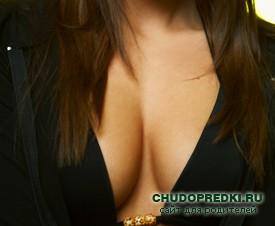 Подтяжка груди безоперационным способом во владивостоке