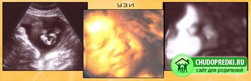 Нормы узи на 33-34 недели беременности