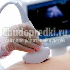 Преимущества ранней диагностики беременности