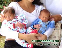 Многоплодная беременность. Течение и ведение родов