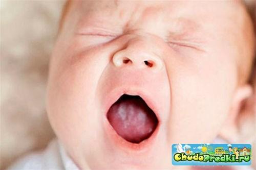 Стоматит у ребенка. Как лечить?