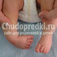 Косолапость у детей: симптомы и лечение