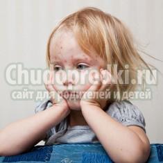 Как начинается ветрянка у детей? Родителям на заметку