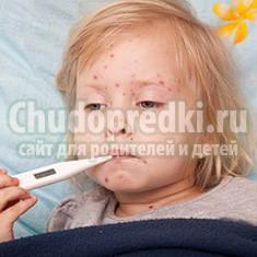 Как выглядит краснуха у детей? Основные симптомы