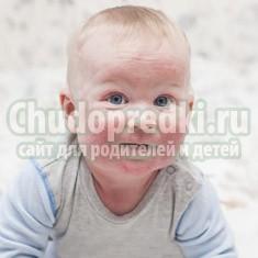 Инфекционные болезни с сыпью у детей