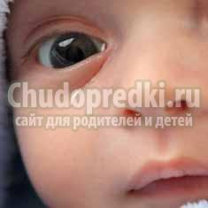 У ребенка слезится один глаз: причины и методы лечения